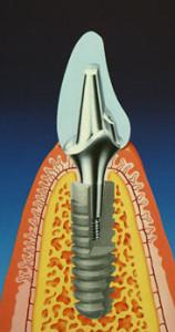 Имплантаты-Анкилоз