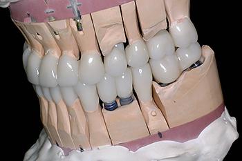 Коронки с опорой на имплантат
