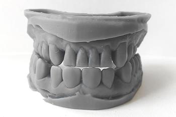 3D печать в стоматологии
