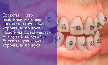 Скученность зубов – заболевание, требующее лечения